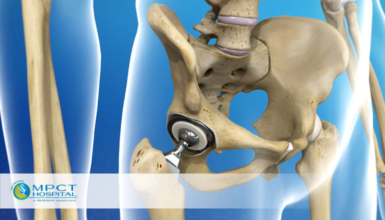 Myths and Reality of Total Hip Replacement - Best Hospital